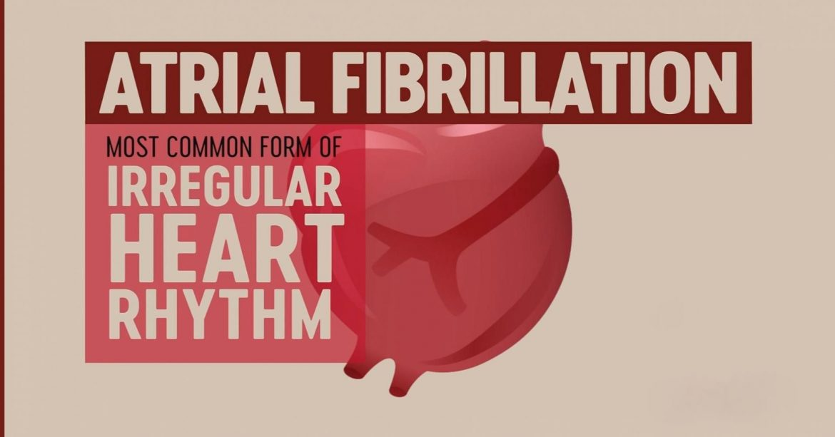 7 Common Atrial Fibrillation Dangers You Should Avoid