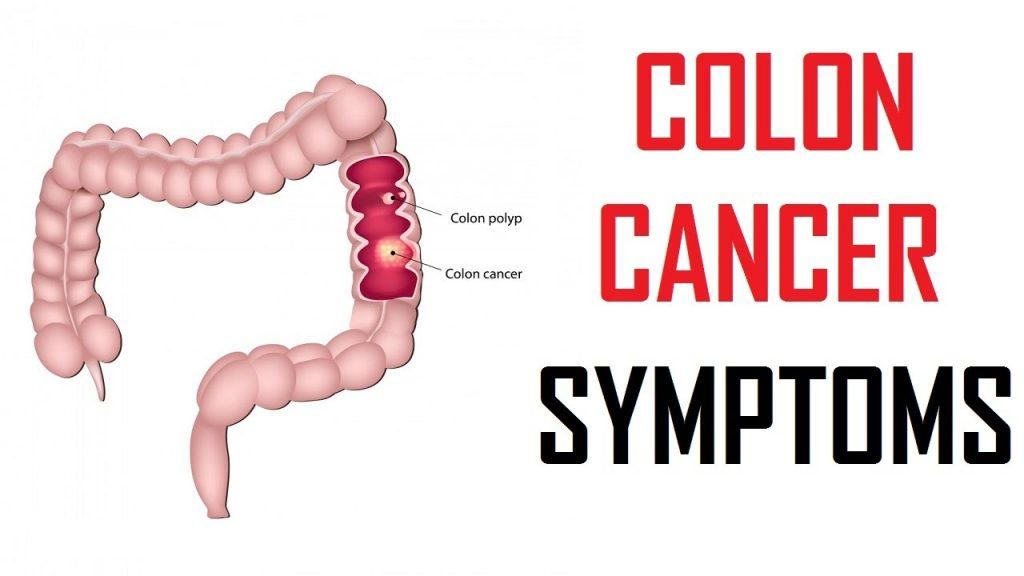 Image result for colon cancer informational images