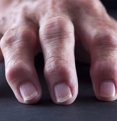 10 Skin Symptoms That Can Reveal Major Health Issues